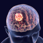 Brain cancer onset from toxic exposure